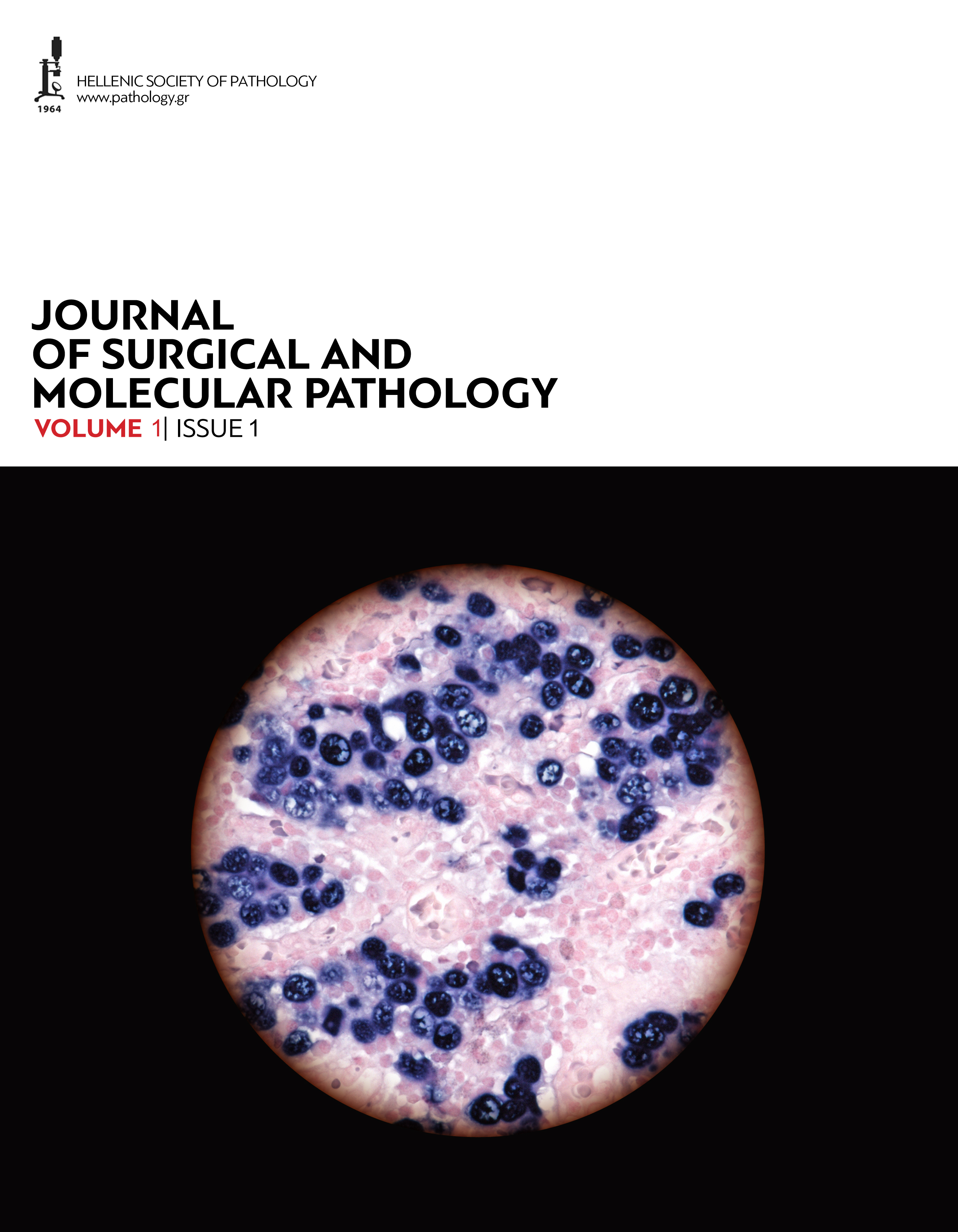 Journal of Surgical and Molecular Pathology, Volume 1, Issue 1 (2015)