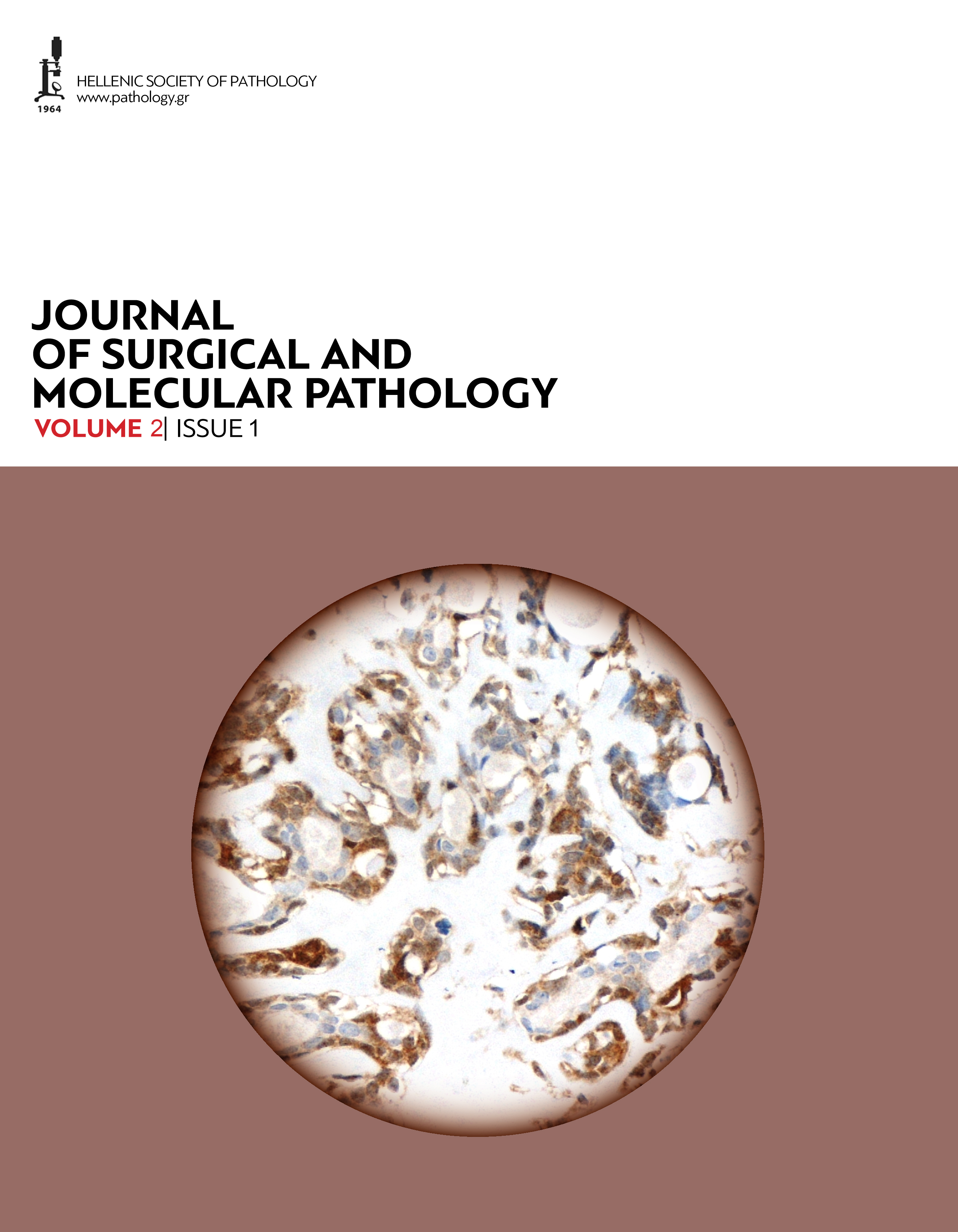 Journal of Surgical and Molecular Pathology, Volume 2, Issue 1 (2016)