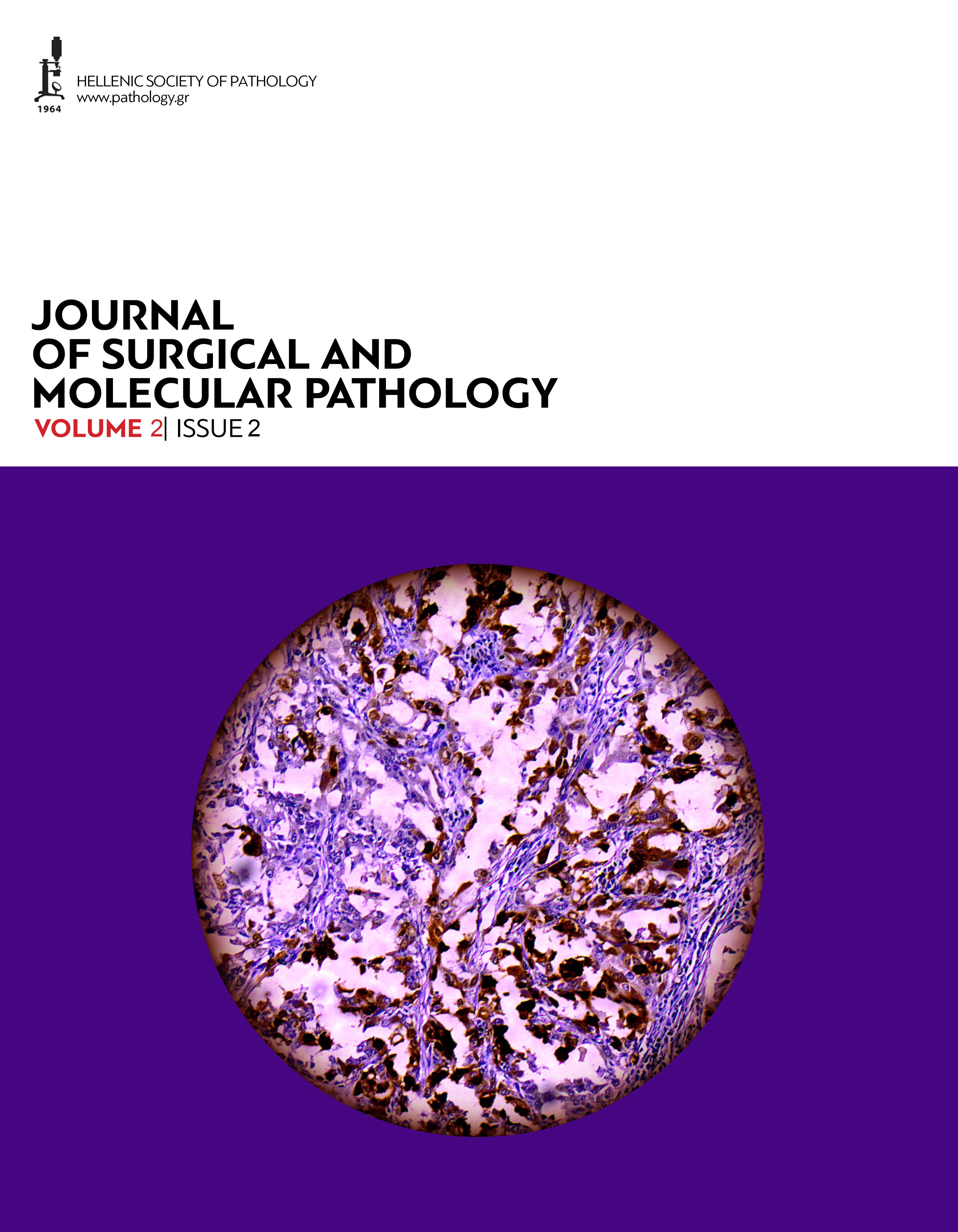 Journal of Surgical and Molecular Pathology, Volume 2, Issue 2 (2016)