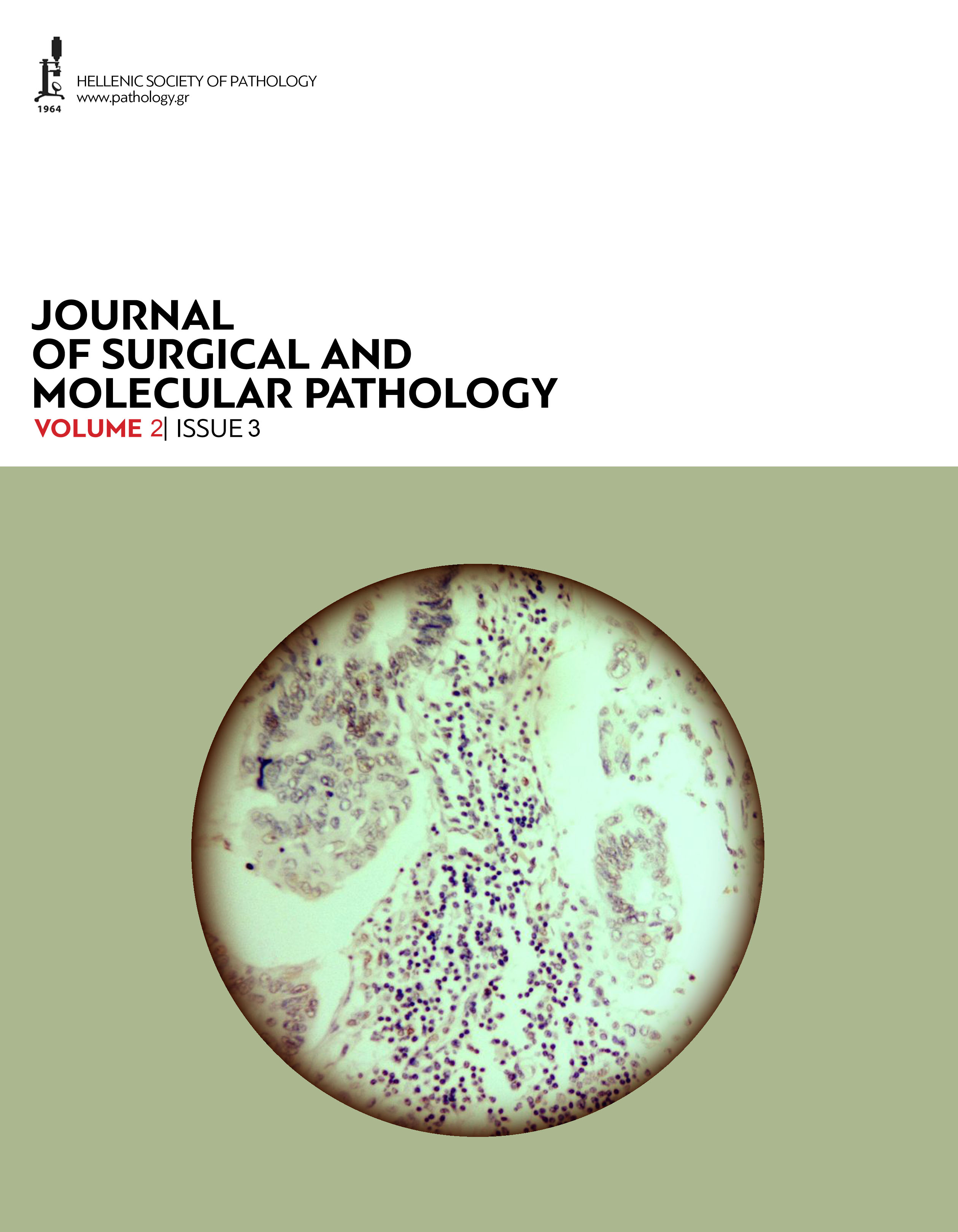 Journal of Surgical and Molecular Pathology, Volume 2, Issue 3 (2016)